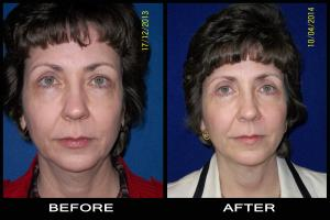 eyelid surgery pictures