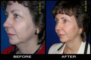 eyelid surgery